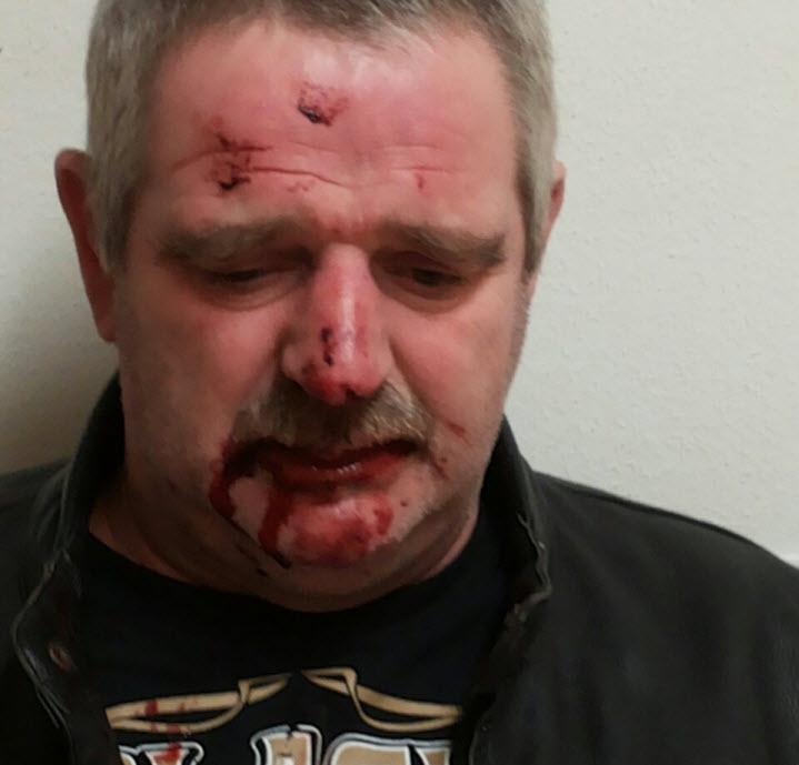 slachtoffer mishandeling
